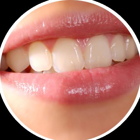 Professionelle Zahnreinigung In Twist Bült Zahnarztpraxis Dringo